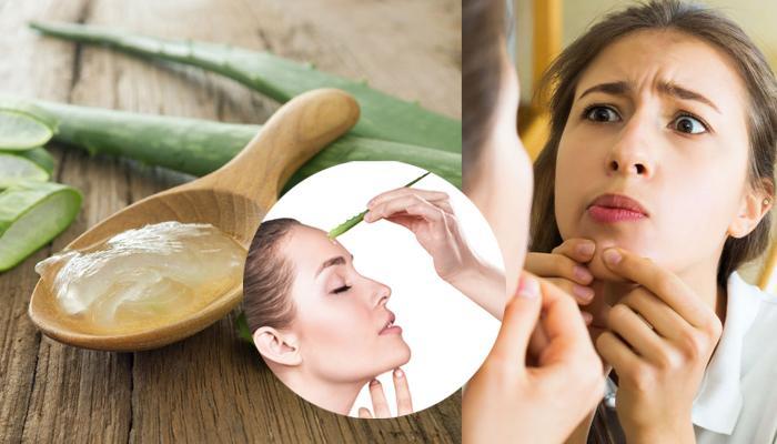 Beauty Tips: पिंपल्स और मुंहासों से हैं परेशान तो अपनाएं ये घरेलू नुस्खे, जल्द मिलेगी साफ त्वचा